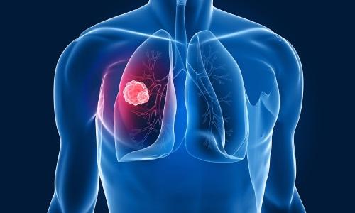 Препарат не назначают при открытой форме туберкулеза легких