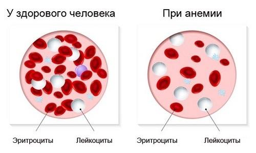 На фоне применения рассматриваемого препарата может развиться анемия