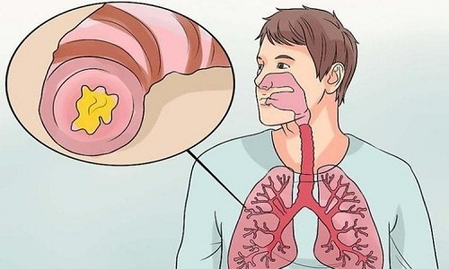 С осторожностью Брилинту 90 принимают при бронхиальной астме