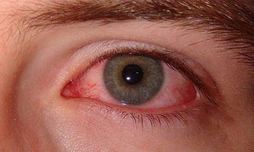 При дефиците витамина Р появляется кровоизлияния в глазных яблоках