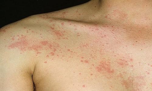 В медицинской практике были зарегистрированы единичные случаи развития аллергической реакции в виде раздражения на коже при использовании спрея