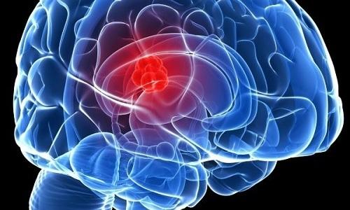 Препарат Курантил выписывают для предупреждения и терапии патологий функции кровообращения в головном мозге
