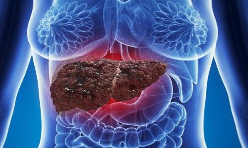 Медикамент противопоказан при заболеваниях печени