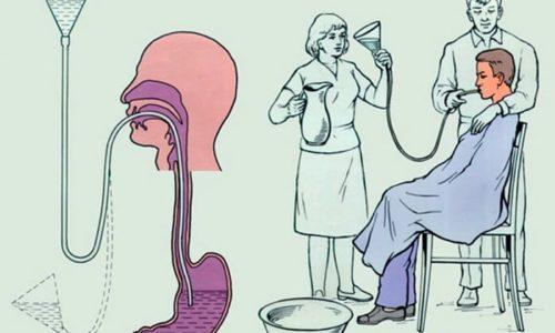 При употреблении больших доз гесперидина и диосмина необходимо промыть желудок