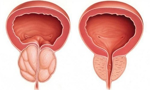 Преимущественно лекарство назначается при хроническом простатите