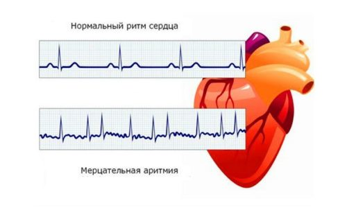 АСК-Кардио эффективен при мерцательной аритмии