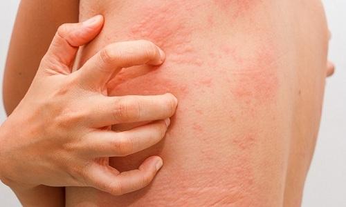 Диклофенак Ретард может воздействовать на кожные покровы, вызывая крапивницу