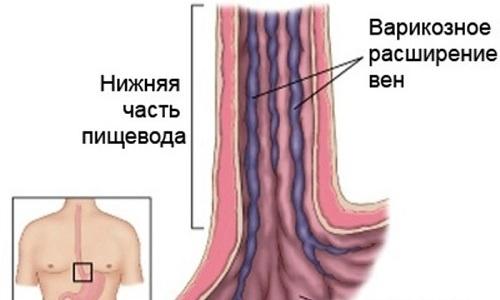 Октреотид Депо помогает при кровотечениях, спровоцированных варикозом вен пищевода
