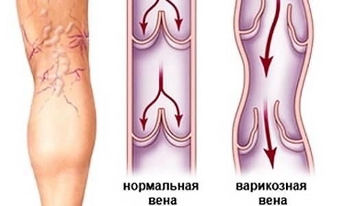 Рецепт на медикамент пациентам с таким фактором риска, как варикоз