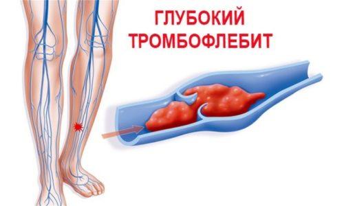 Диклофенак 100 показан при тромбофлебите глубоких вен нижних конечностей