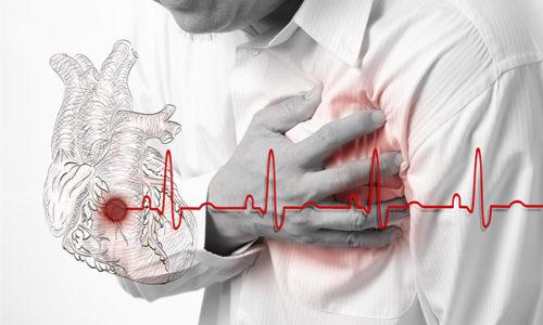 Препарат Коплавикс 100 назначают при нестабильной стенокардии, инфаркте миокарда