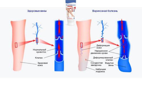 Курсовая терапия с применением крема способствует устранению застойных явлений в нижних конечностях, уменьшению расширения вен на ногах, предупреждению образования тромбов