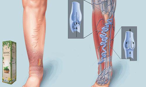 Препарат применяется для лечения варикозного расширения вен