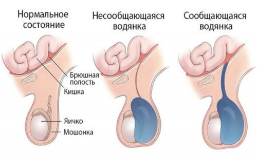 Водянка яичка (гидроцеле). Образуется по причине нарушения целостности лимфатической системы
