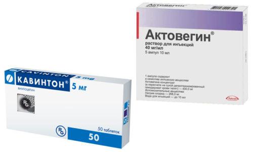 Актовегин и Кавинтон назначаются при нарушении обменных процессов и кровообращения головного мозга