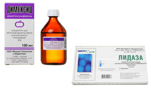 Димексид и Лидаза назначают для терапии грибковых заболеваний, инфекций половых органов