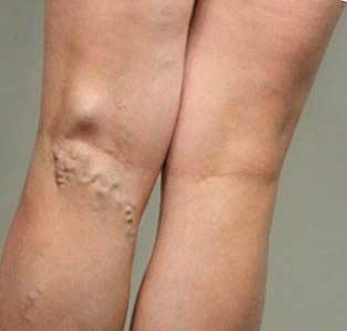 Вариоль - пенка от варикоза