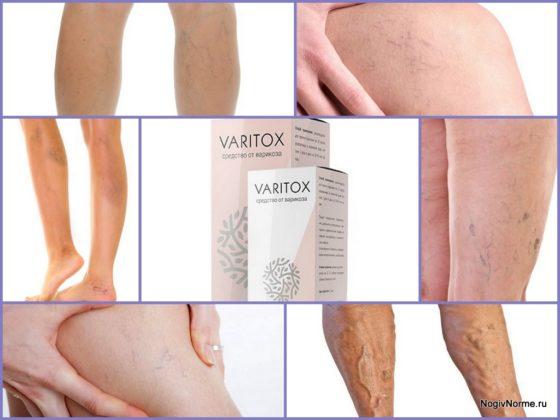 Варитокс средство от варикоза