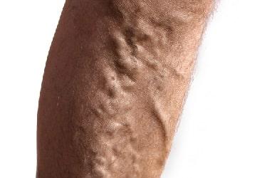 Вариус - гель от варикоза